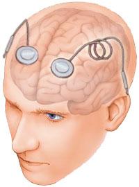 Neurofeedback Computer