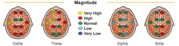 brain map report magnitude